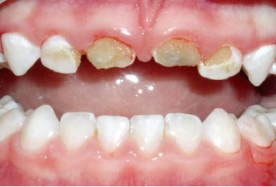 Rotten teeth through over bottle feeding